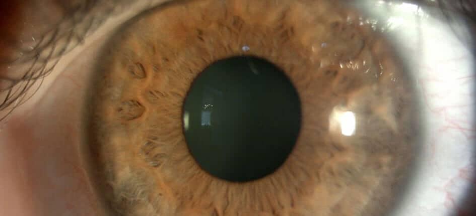 Dry Eye Part 1
