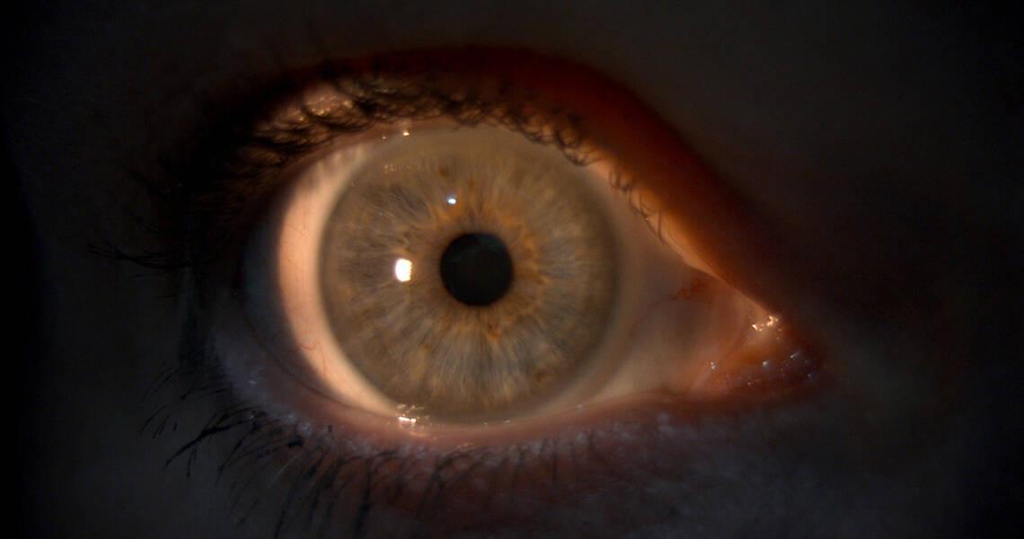 Contact Lenses - Canterbury Eyecare